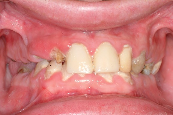 Severe Tooth Decay American College Of Prosthodontists