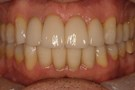 Porcelain Crowns for a Happier Smile