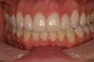 Improved Colors with Veneers