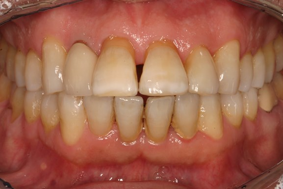 rawdin-crowns-before