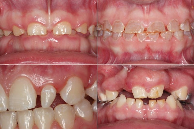 Various Congenital Dental Defects