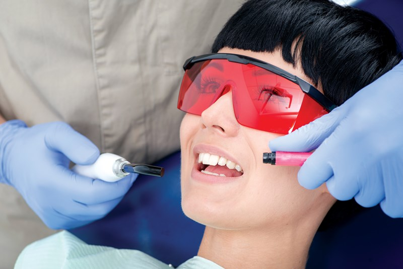 A Dentist applying Dental Sealants