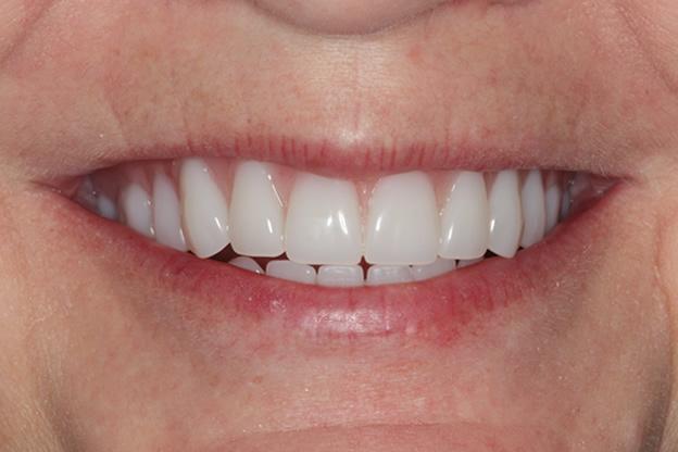Dentures Cost | Best Dental in Houston, TX