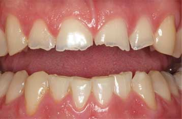Broken teeth as a result of bruxism, aka teeth grinding